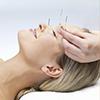 acupuntura_01